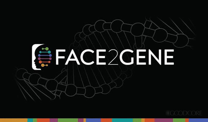 face2gene